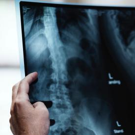 Radiologic Technology | San Joaquin Delta College